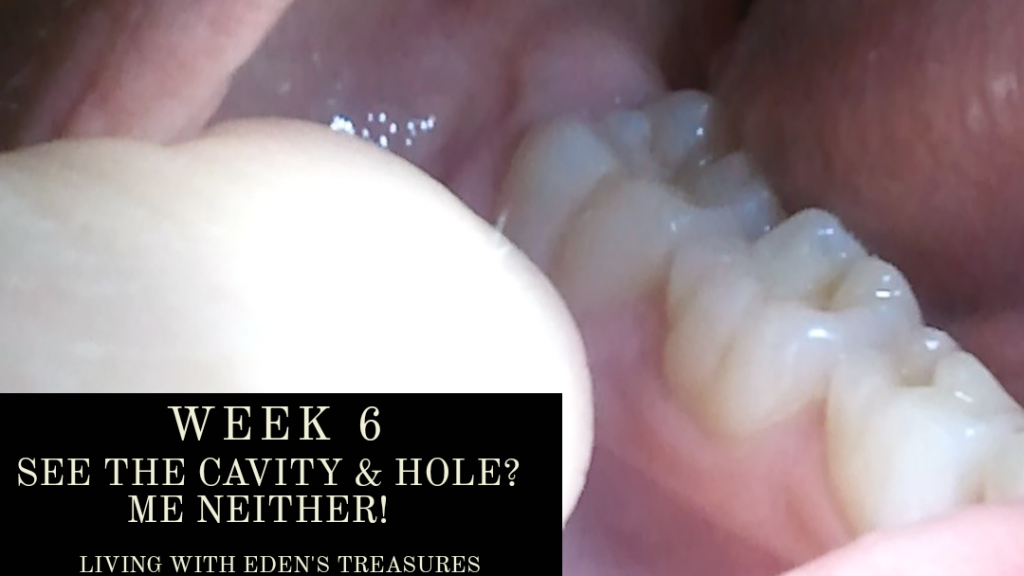 Week 6... where did that cavity go?